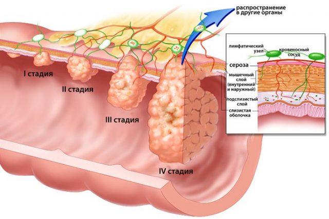 Стадии опухоли кишечника (схема)