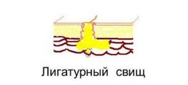 Лигатурный свищ