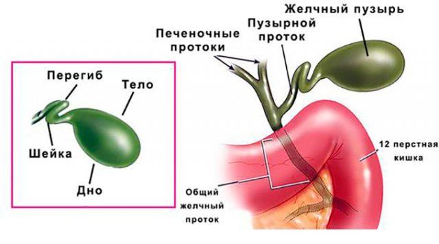 Перегиб желчного пузыря (схема)