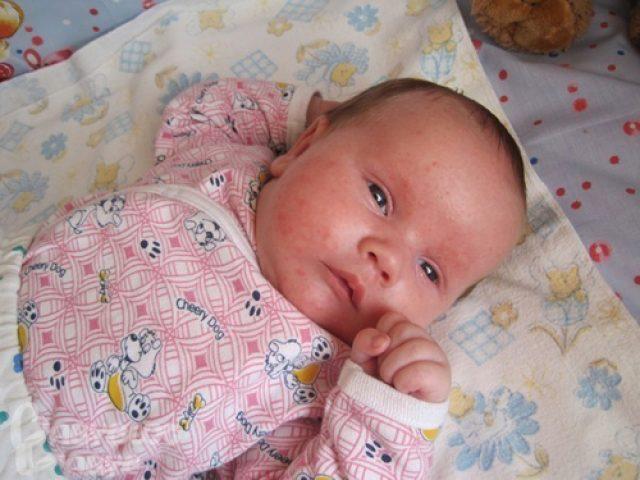 У ребёнка сыпь на щеках