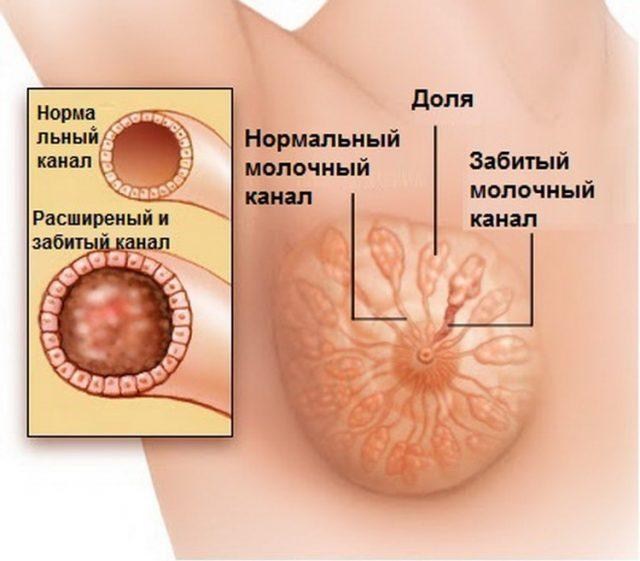 Лактостаз с забитым молочным каналом в груди