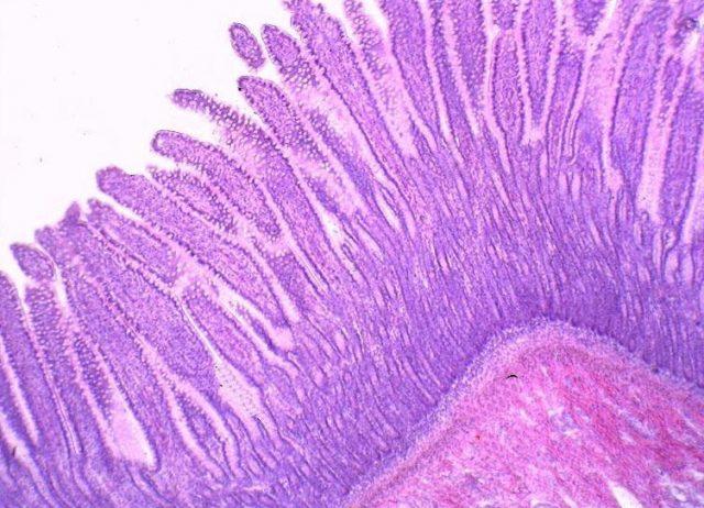 Тонкий кишечник (картина под микроскопом)
