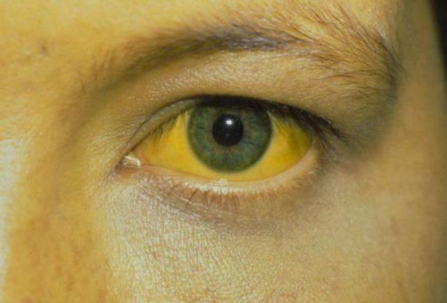 Желтушное окрашивание кожи и склер