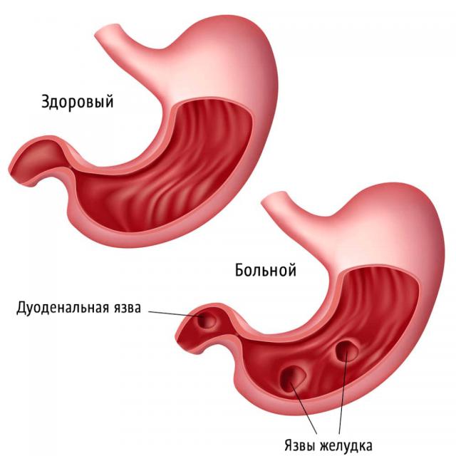 Схематичное изображение язв желудка и двенадцатиперстной кишки