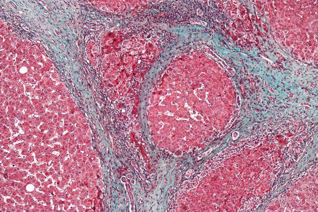 Цирроз печени (картина под микроскопом)