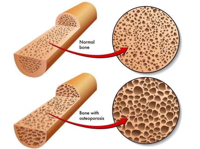 Схематичное изображение нормальной структуры кости и остеопороза