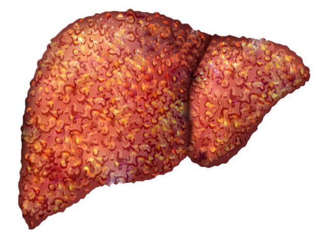 Запущенная стадия цирроза печени