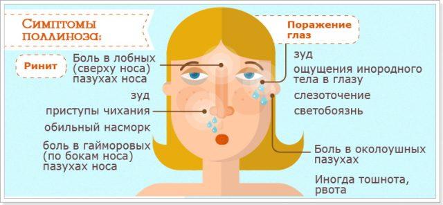 Симптомы поллиноза (схема)