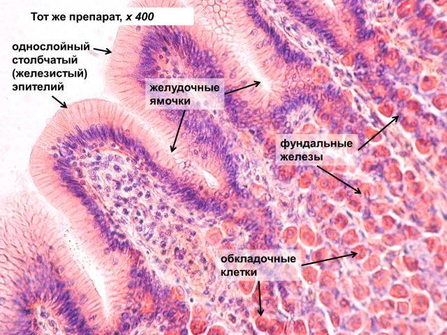 Слизистая желудка (картина под микроскопом)