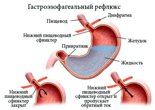 ГЭРБ (схема)
