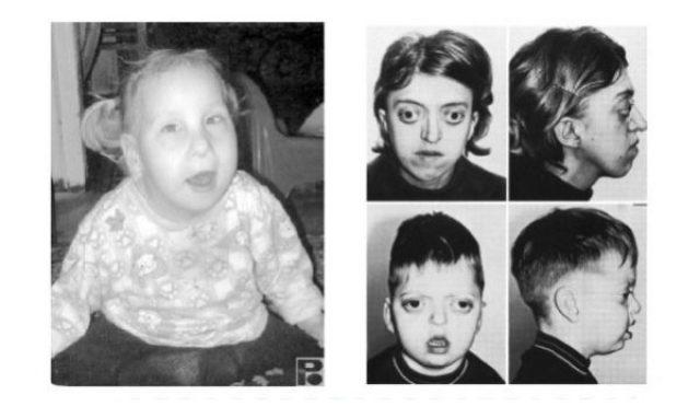 Дети, больные фенилкетонурией