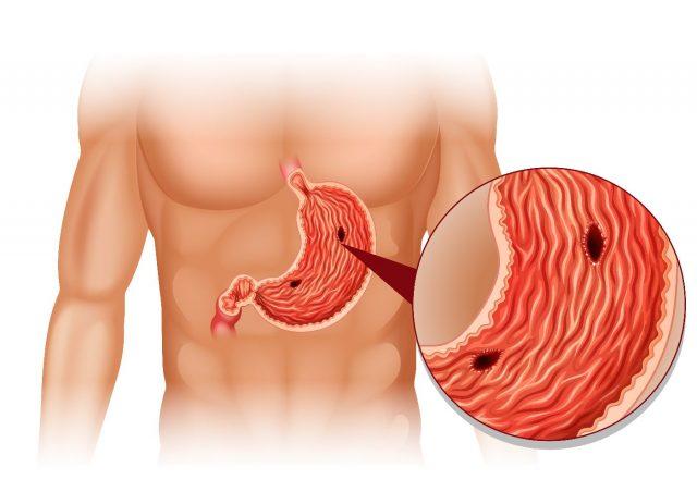 Схематичное изображение язв желудка