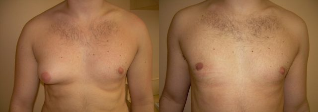 Гинекомастия правой грудной железы до операции и после