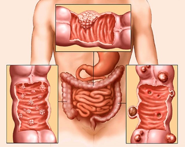 Опухоль толстой кишки (схема)