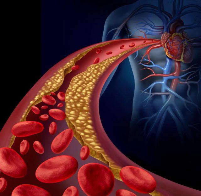 Схематичное изображение атеросклероза