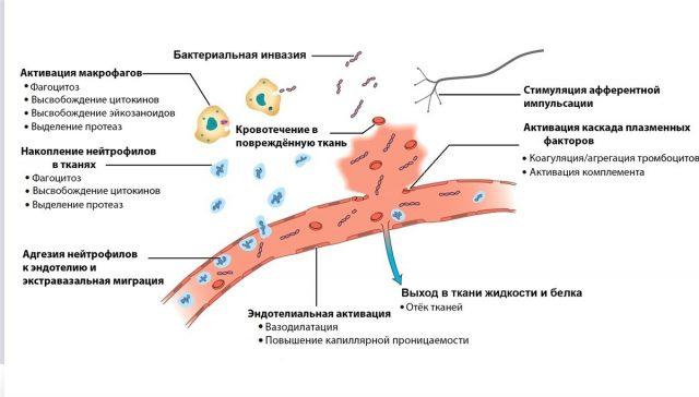 Воспалительная реакция (схема)