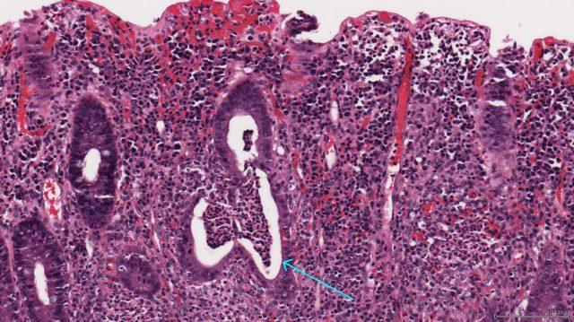 Язвенный колит (картина под микроскопом)