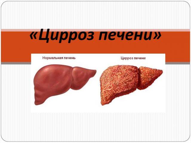 Здоровая печень и орган, поражённый циррозом