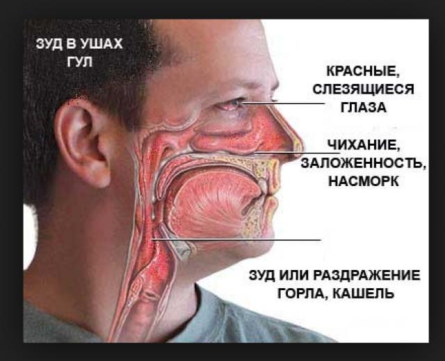 Характерные общие симптомы поллиноза