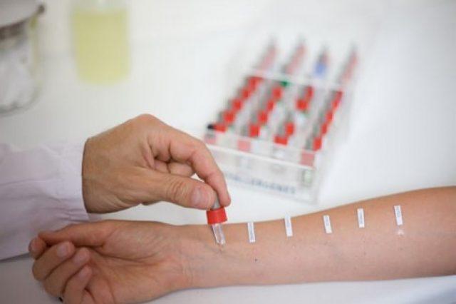 Проведение кожной аллергопробы