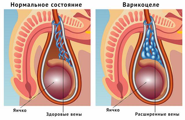 Нормальные вены мошонки (слева) и варикоцеле (справа)