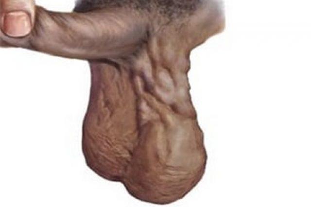 Мошонка больного варикоцеле