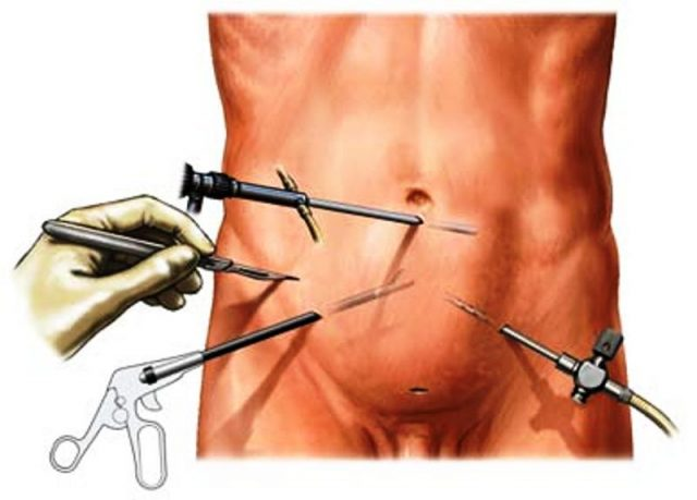 Лапароскопия при варикоцеле (схематично)