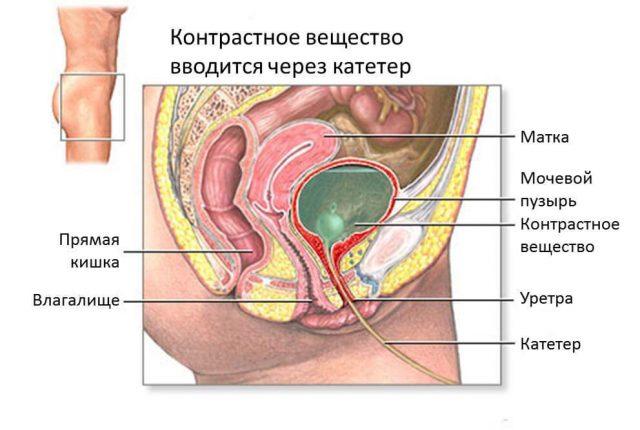 Контрастное вещество в мочевом пузыре