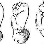 Разгибательное предлежание плода (схема)