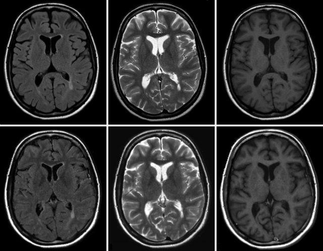 Томографическая картина головного мозга
