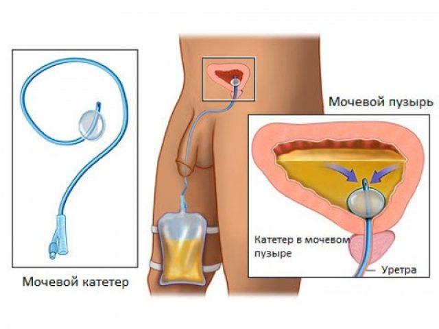 Катетеризация мочевого пузыря (схема)
