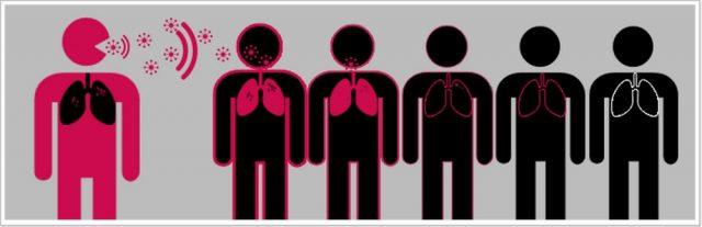 Схема заражения туберкулёзом