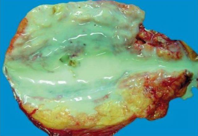 Пионефроз (почка в разрезе)