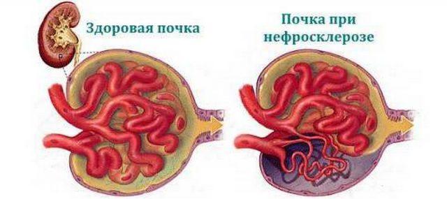 Изображение здорового нефрона и поражённого нефросклерозом