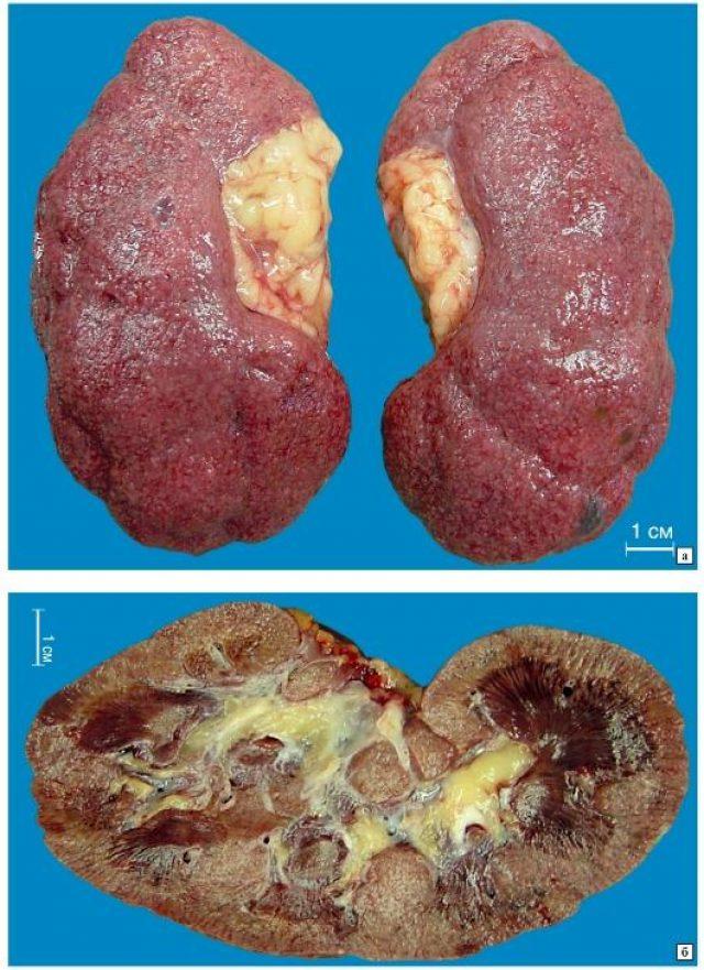 Макропрепарат почек: артериолосклеротический нефросклероз