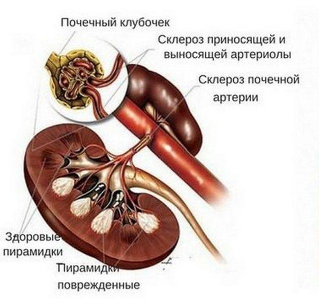 Изменения в почках, происходящие из-за склероза сосудов