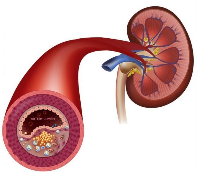 Почка и почечная артерия