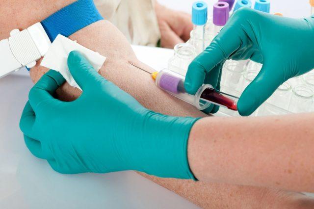 Процедура забора крови из вены