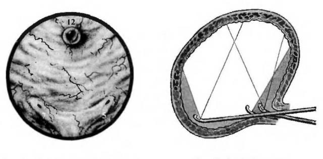 Здоровый мочевой пузырь (слева) и слепые зоны (справа) при обзорной цистоскопии