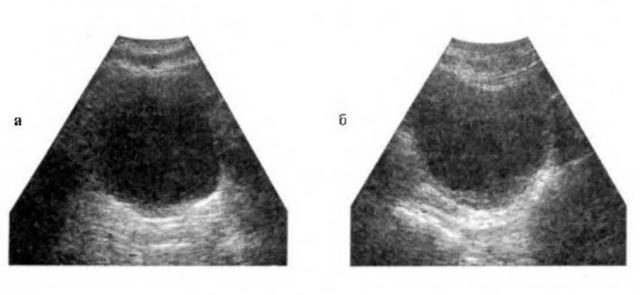 Ультразвуковая сканограмма здорового мочевого пузыря