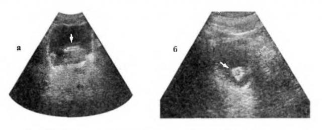 УЗ-эхограммы при опухоли, растущей в просвет мочевого пузыря