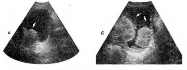 УЗ-сканограммы при опухолях, прорастающих стенку мочевого пузыря