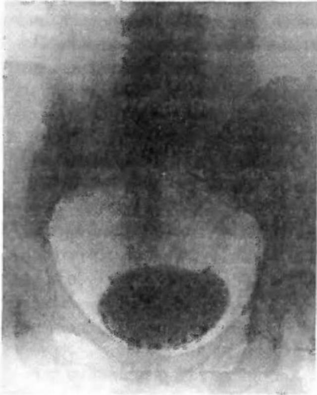 Экскреторная урограмма здорового мочевого пузыря