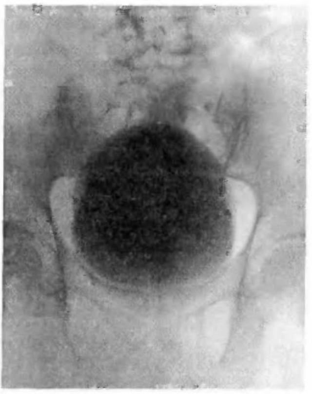 Ретроградная цистограмма в норме