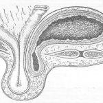 Грыжа мочевого пузыря
