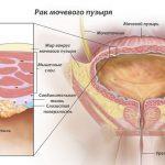 Раковая опухоль мочевого пузыря
