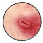 Язва мочевого пузыря