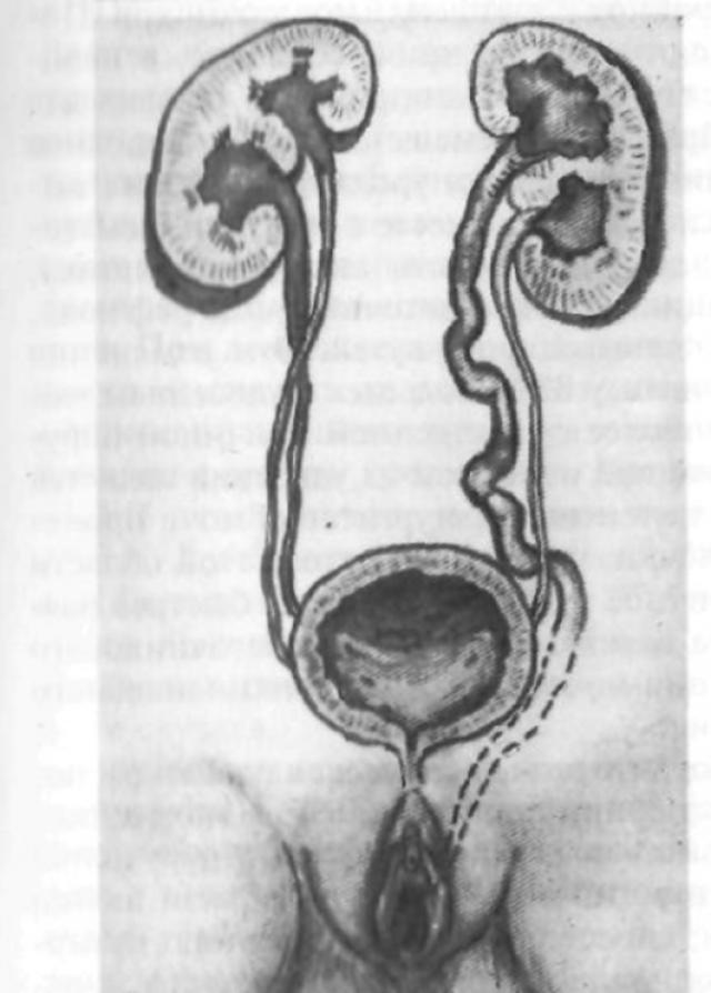 Сочетание удвоения почек и мочеточников с открытием верхнего ствола левой половинки в уретру