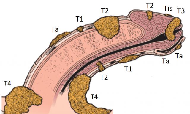 Стадии рака полового члена (схема)