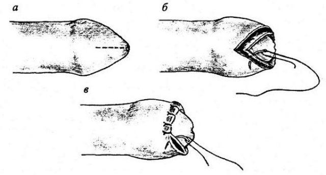 Циркумцизио (схема)